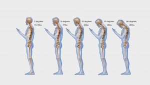 neck damage from excessive cell phone use